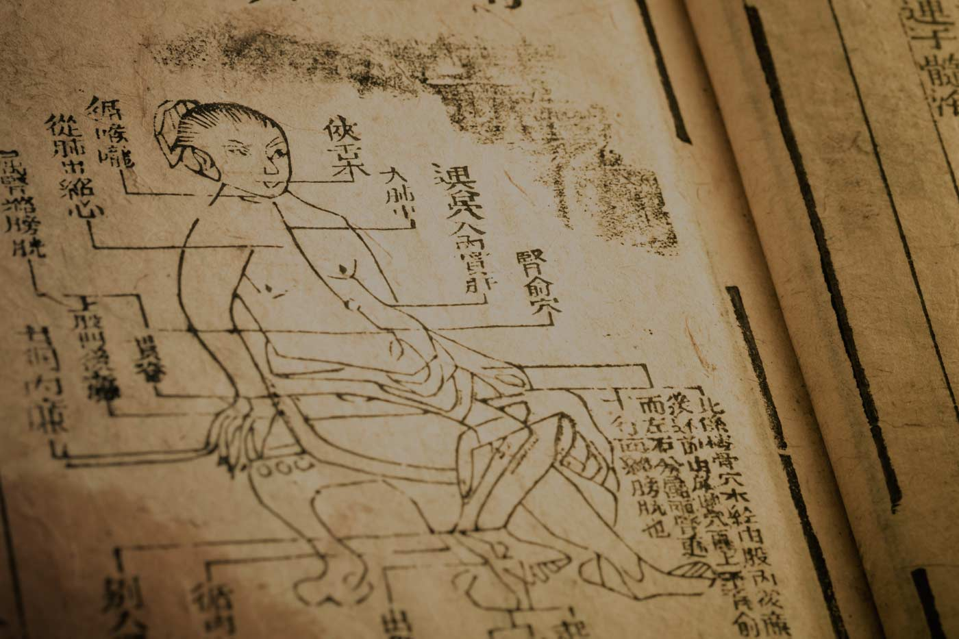 Stroke recovery with Acupuncture