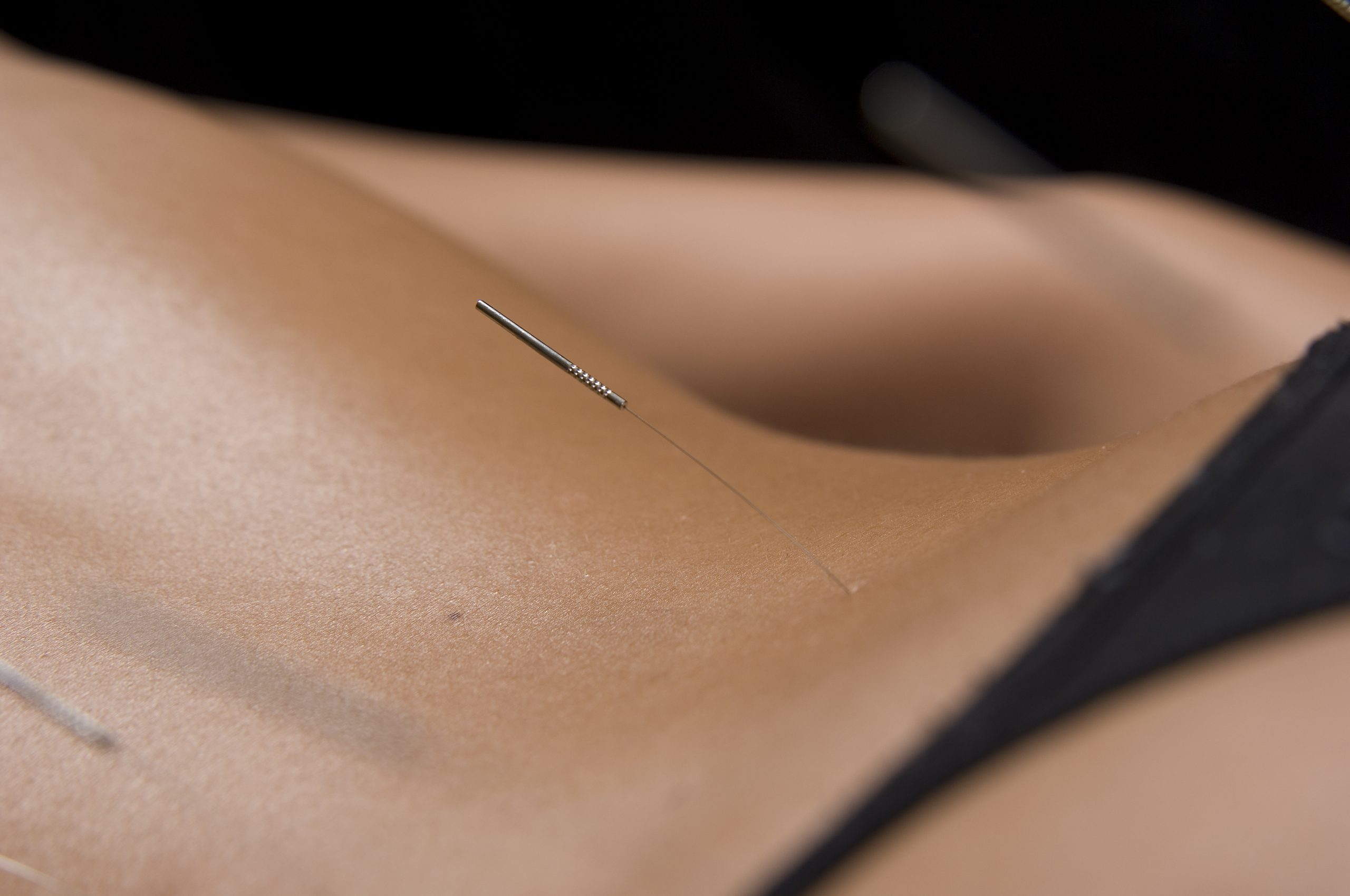 how to find the best acupuncturist in London